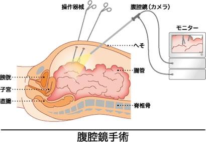 腹部的筋位置图解