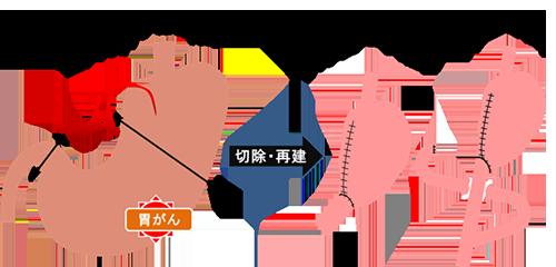 幽門側胃切除術、切除・再建、ビルロートI法・ルーY法