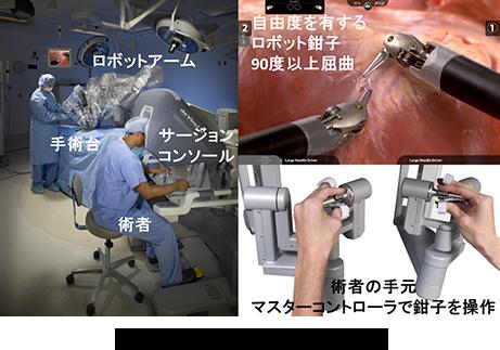 ロボット(ダヴィンチ)胃切除
